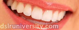 Lamina diş fiyatları, kompozit lamina diş, Lamina kaplaması