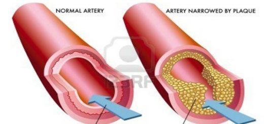 damar tıkanıklığının sebepleri, damar tıkanıklığı nedir, damar tıkanıklığı oluşma sebepleri