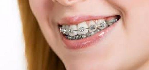ortodonti fiyatları, ortodonti tedavi fiyatları, ortodonti işlem fiyatları