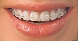 şeffaf diş teli, şeffaf diş teli bakımı, diş teli bakımı yapma