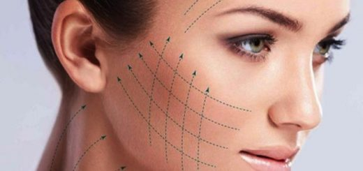 endoskopik yüz germe, yüz germe işlemi, yüz germe ile gençleşme