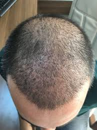saç ekimi doktoru, saç ektirme, saç ekim fiyatları