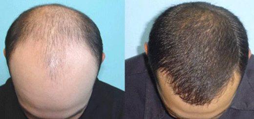 saç ekimi doktoru, deneyimli saç ekimi doktoru, saç ekimi yaptırma