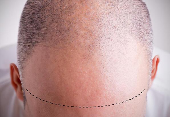 saç ekimi önemi, saç ekimi yapımı, neden saç ekimi yapılmalı