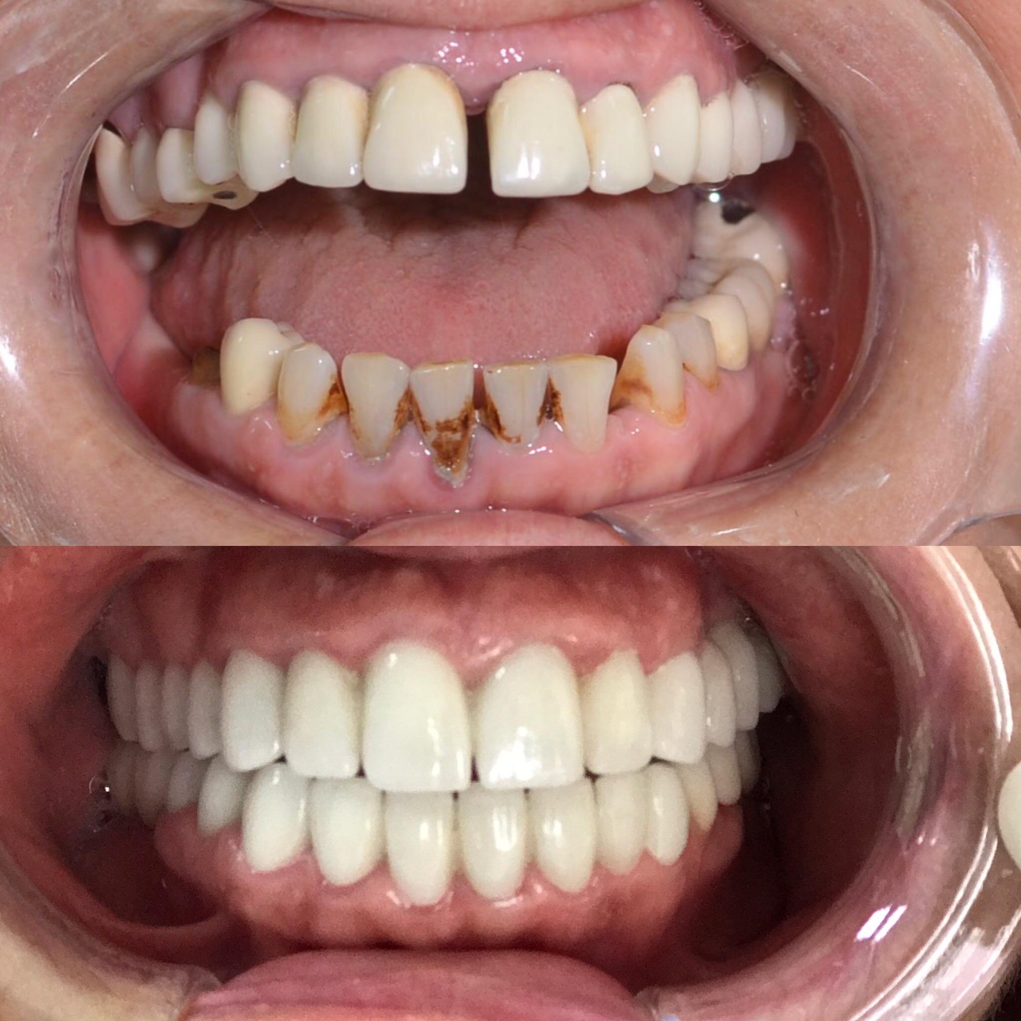 zirkonyum diş, zirkonyum dişin iyi yönleri, zirkonyum diş kaplaması