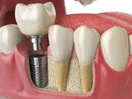 ucuz implant, implant yapımı, implant nasıl yapılıyor