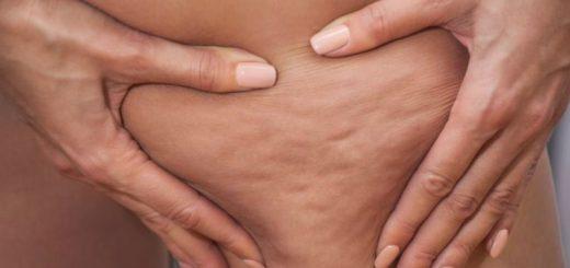 selülit tedavisi, selülit nasıl tedavi edilir, selülit tedavisi nasıl yapılabilir