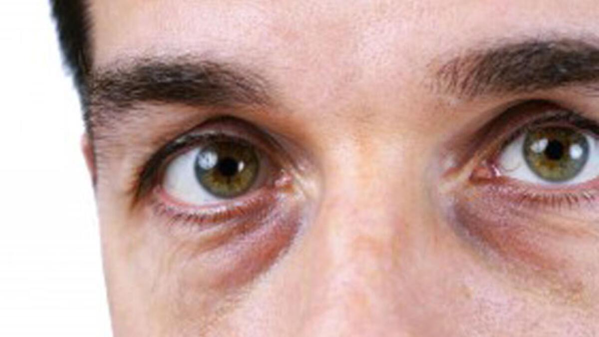 göz altı morlukları, göz altı morluklarına ne iyi gelir, göz altı morluğu nedenleri