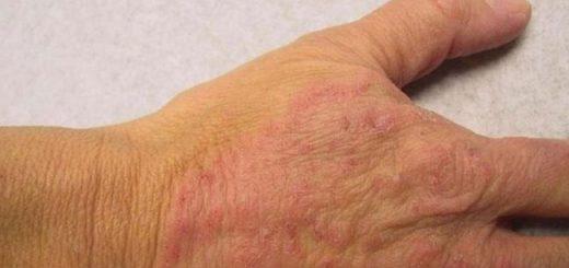 mantar enfeksiyonu, mantar yayılmasını önleme, mantar hastalığını önleme